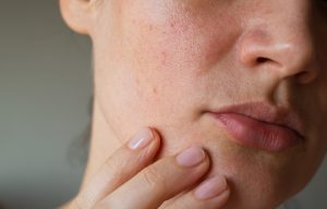 kulit iritasi kering