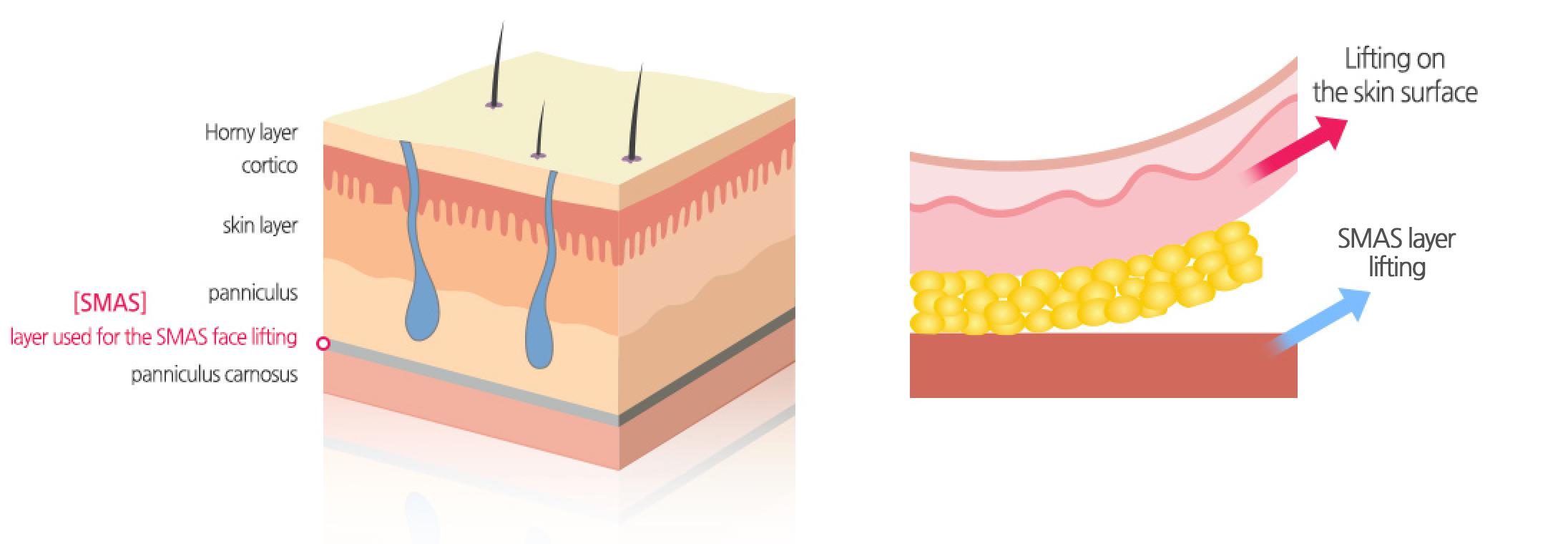 SMAS layer Ultherapy