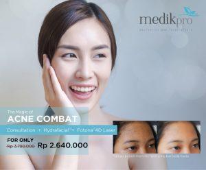 acne laser