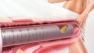 intimalase laser vaginal tightening